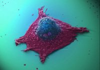 Медики нашли средство против бессмертных клеток рака