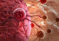 Найдены ключевые причины неизлечимости рака