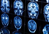 В Китае нейросеть нашла опухоль мозга быстрее 15 врачей