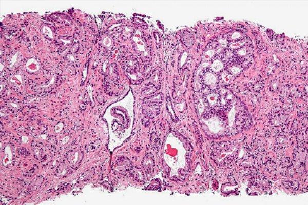 Мутация, которая затрагивает ген PIK3CA в клетках предстательной железы, способствует появлению агрессивной формы новообразования