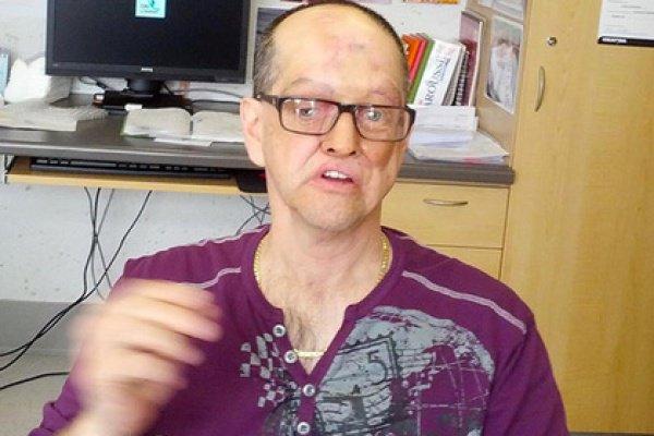 У канадца был диагностирован рак околоносовых синусов и лимфатических узлов