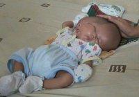 Мальчик с 2 лицами родился в Индонезии