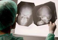 Найден новый способ диагностики травм мозга