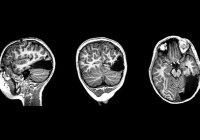 7-летний мальчик остался без части мозга и выжил
