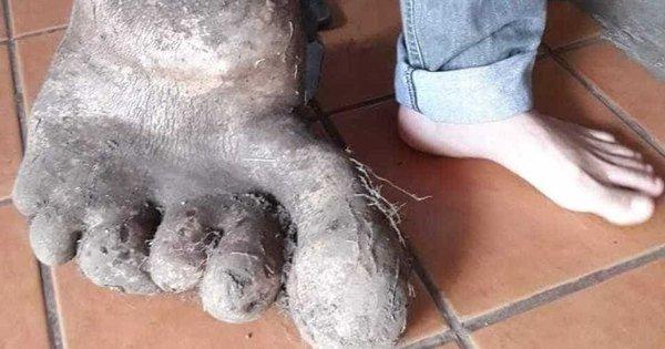 Фермеры обнаружили необычный плод в форме стопы с 6 пальцами и весом порядка 8 килограммов