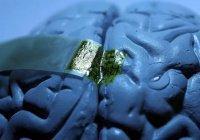 Ученые: Чипы в мозге превратят людей в психопатов