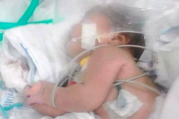 Медики сняли подгузник и увидели в пупке малышки скорпиона, успевшего укусить ребенка 7 раз