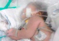Девочка 3 дней от роду пережила смертельные укусы скорпиона