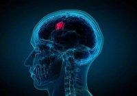 В Новосибирске раковую опухоль мозга удалили через бровь