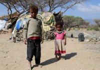 Война в Йемене: около 40% из 400 000 детей, страдают от острого недоедания...