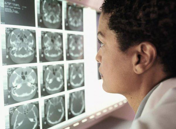 Разработка сможет не только быстро выявить раковую область, но также поможет хирургам во время проведения операции