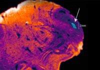 В человеческом мозге обнаружили загадочную структуру