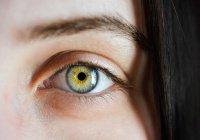 В Бельгии женщина из-за душа осталась без глаза