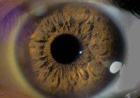 Лекарство от рака нашли в обычных глазных каплях